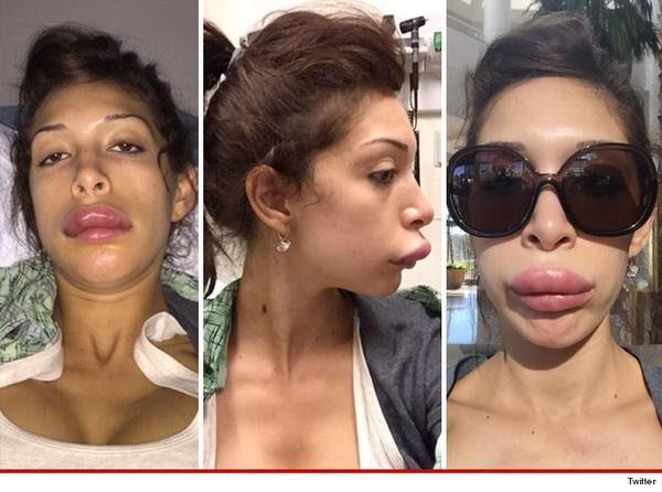Ngôi sao 'Teen Mom' khoe môi dị dạng vì phẫu thuật thẩm mỹ