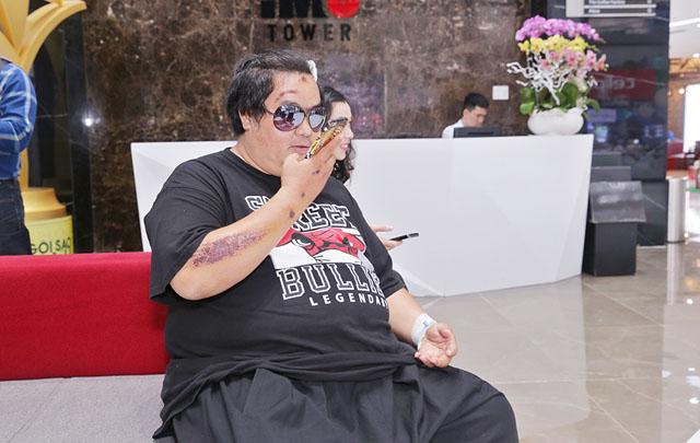 """Nghệ sĩ Hoàng Mập """"trốn viện"""" đi dự họp báo Ngôi Sao Xanh"""