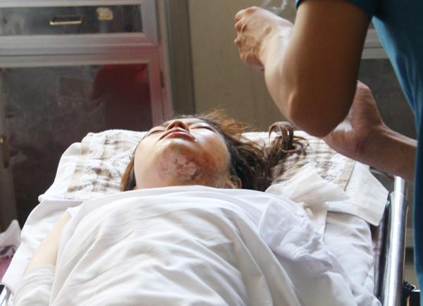 Nữ sinh viên bị tạt a xít tại trường đại học