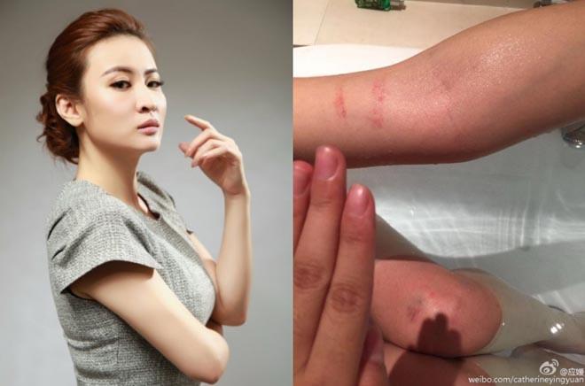 Người đẹp Hoa ngữ phát tán ảnh bị đạo diễn hãm hại, đánh đập