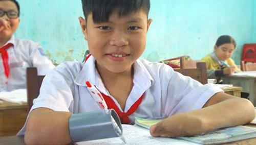 Cậu bé mất hai tay viết bài bằng… ống nhựa
