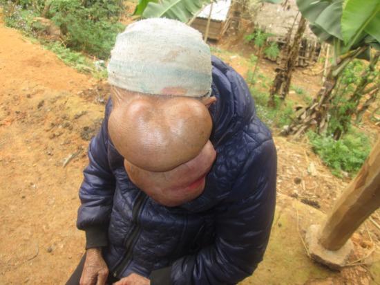 Tận cùng nỗi đau của người phụ nữ 25 năm mang khối u khổng lồ trên mặt