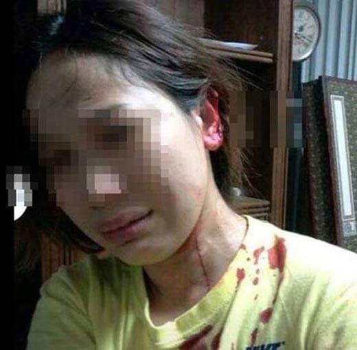 Phẫn nộ hình ảnh cô gái bị chồng cắt tóc, cắn tai