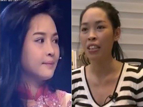 11 sự thay đổi nhan sắc ngoạn mục của bạn trẻ Việt sau khi PTTM