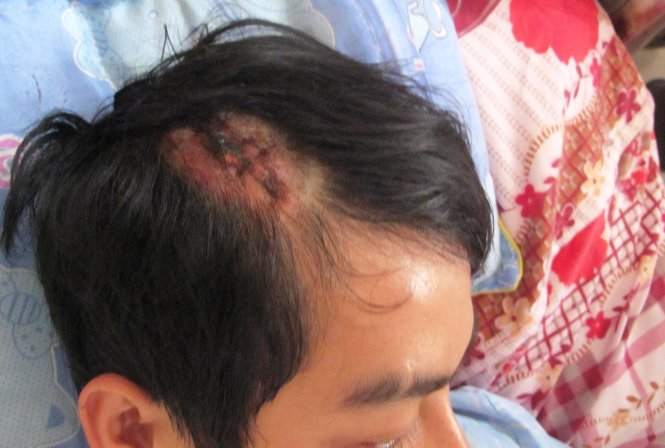 Hành khách tố nhà xe dùng tuýp đánh chấn thương sọ não