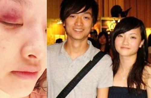 Ca sĩ Hong Kong bị bạn trai đánh vì nghi phản bội