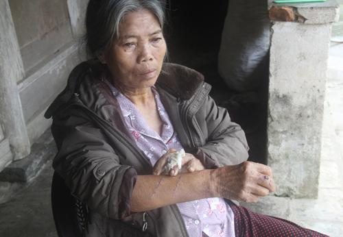 Bà lão 70 tuổi thắng tên cướp cầm dao