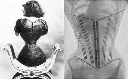 Xem xương sườn, phổi phụ nữ bị biến dạng sau chiếc áo corset