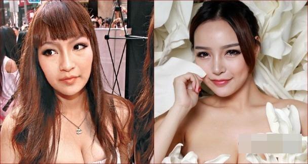 Người mẫu Hong Kong lên đời cát-xê nhờ thẩm mỹ