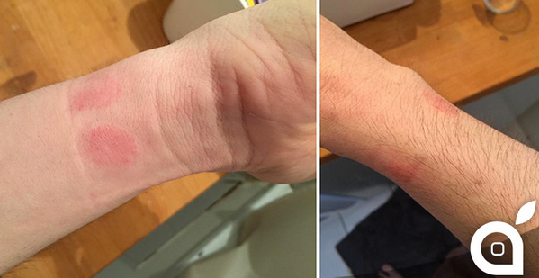 Nhiều người bị dị ứng da khi đeo Apple Watch