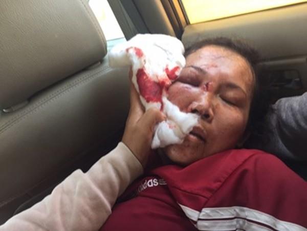 Cả nhà công an xã đánh một phụ nữ ngất xỉu để đòi nợ