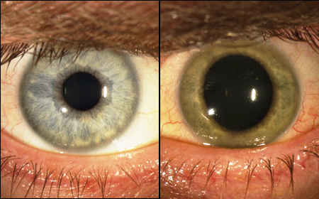 Mắt bị đổi màu sau khi chữa khỏi Ebola