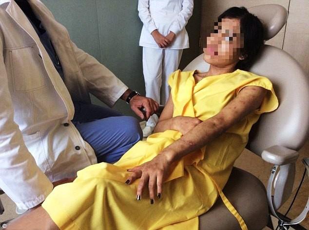 Chấn động: Cô gái trẻ bị giam giữ, hành hạ dã man suốt hai năm