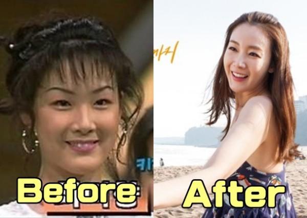 Lộ ảnh Choi Ji Woo chưa phẫu thuật thẩm mỹ năm 19 tuổi