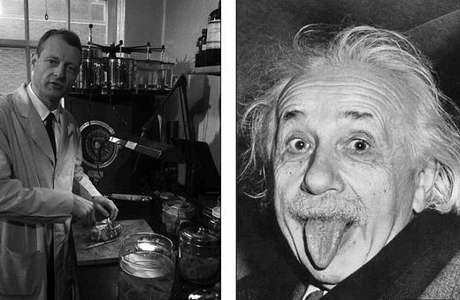 """Bộ não Albert Einstein và cuộc """"phiêu lưu"""" kì thú có thể bạn chưa biết"""