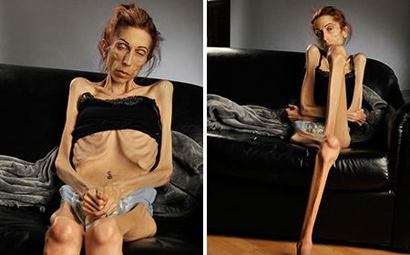 Sốc với thân hình của người phụ nữ siêu gầy cao 1m70, nặng chỉ 22kg