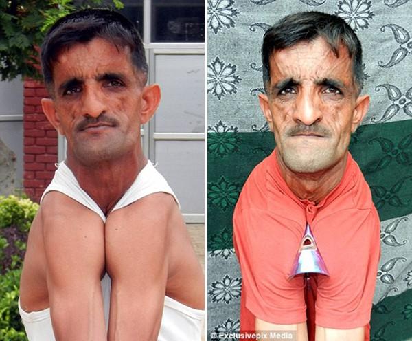 Lác mắt với người cao su siêu dẻo có khả năng chạm hai đầu vai vào nhau