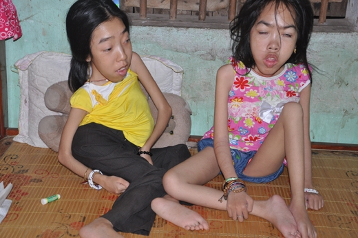 Xót xa trước hoàn cảnh của hai cô gái có ngoại hình giống rắn