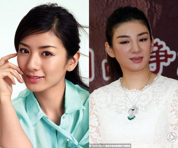 Gương mặt sưng phù vì thẩm mỹ của Huỳnh Dịch