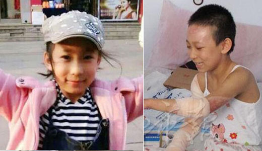 Bé 9 tuổi bị bỏng nặng vì liều mình cứu bà khỏi hỏa hoạn