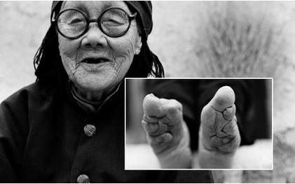 Bộ ảnh về những nhân chứng cuối cùng của tục bó chân tại Trung Quốc