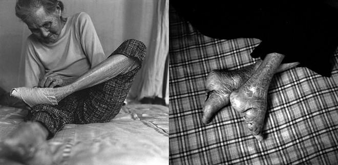 Những người phụ nữ bó chân cuối cùng của Trung Quốc