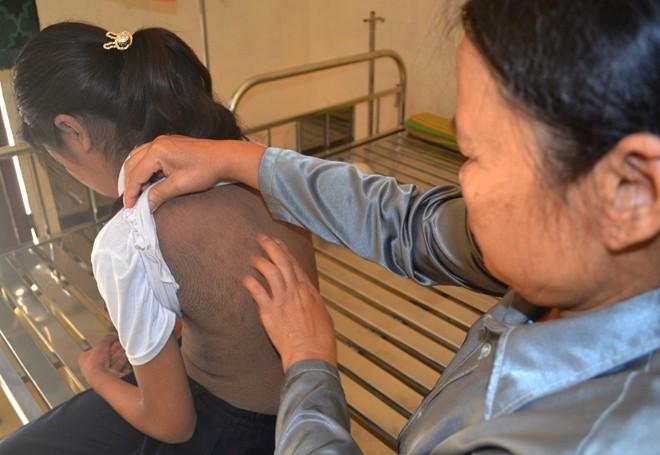 Nữ sinh 13 tuổi mắc bệnh toàn thân đen sạm như da trâu
