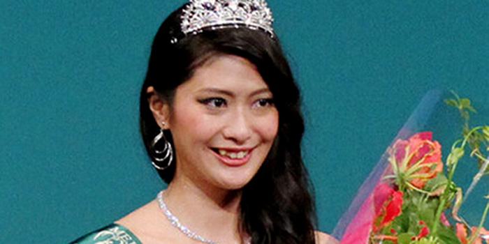 Tân Hoa hậu Nhật Bản gây sốc vì răng khấp khểnh