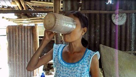 Bác sĩ nói gì về cô gái ngày ăn 6 lon gạo, uống 15 lít nước