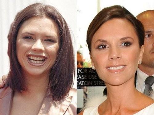 Sao Hollywood trước và sau khi chỉnh sửa hàm răng