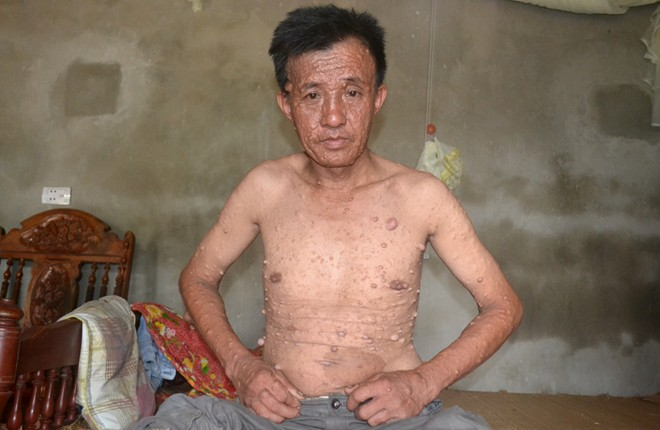 Người đàn ông mọc hàng trăm khối u khắp toàn thân