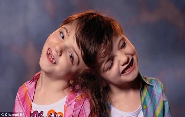Cặp song sinh dính đầu có khả năng nhìn bằng mắt của nhau