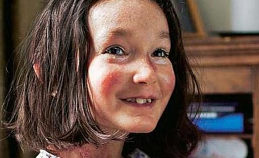 Nghị lực phi thường của bé gái đạt giải Niềm tự hào nước Anh