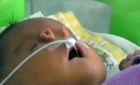 Bé trai chào đời với 4 lỗ mũi trên mặt