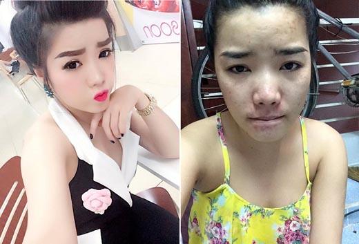 Sau 4 năm 'đấu tranh', cô gái quyết định lộ mặt mộc vì không muốn lừa dối bạn trai