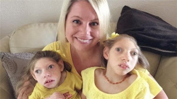 Câu chuyện thần kì của bà mẹ có 2 con gái bị teo não