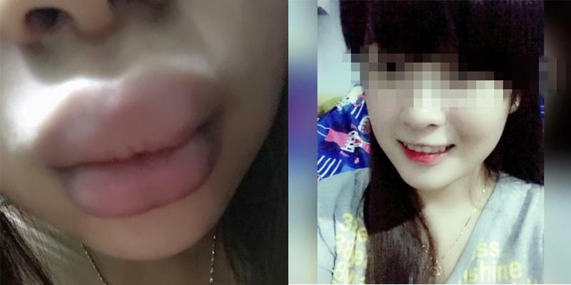 """Đôi môi khốn khổ của cô nàng dùng phải son """"rởm"""""""