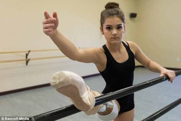 Nữ sinh bị cưa chân trở thành nghệ sĩ múa ba lê