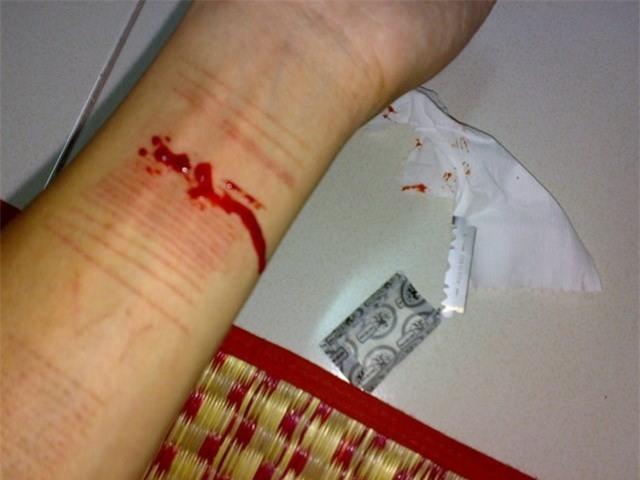 Vấp ngã đầu đời: Tôi cắt tay tự tử sau khi sống thử cùng anh