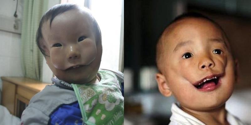 """Câu chuyện khiến bạn rơi nước mắt về một cậu bé mang """"hai khuôn mặt"""""""