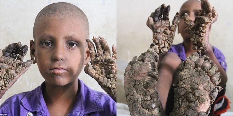 Xót thương cậu bé 7 tuổi sống trong hình hài... một thân cây