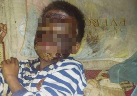 Dân mạng kêu gọi giúp cậu bé nghèo bị bỏng toàn bộ khuôn mặt