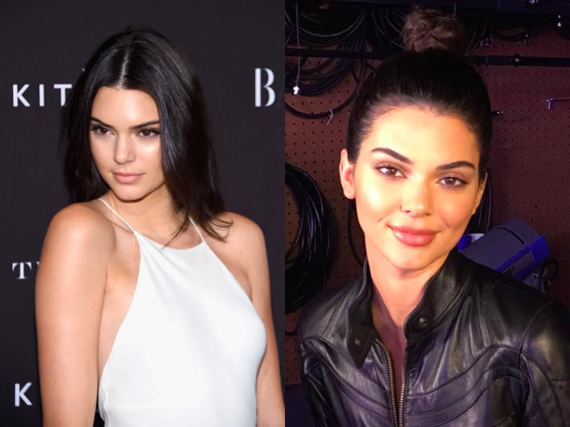 Rộ nghi vấn Kendall Jenner bắt chước em gái bơm môi