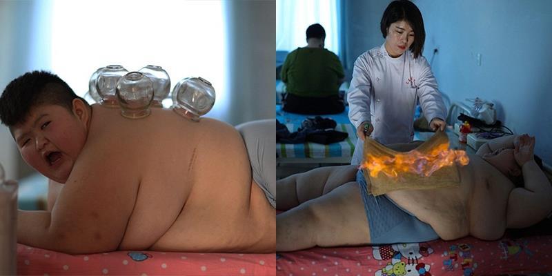 """Hoảng hồn cảnh cậu bé 11 tuổi phải """"giác hơi đốt mỡ"""" để chữa béo phì"""