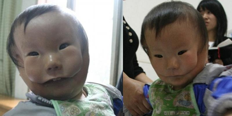 """Liệu có còn ai nhớ đến cậu bé khốn khổ mang """"hai khuôn mặt"""" ngày ấy?"""