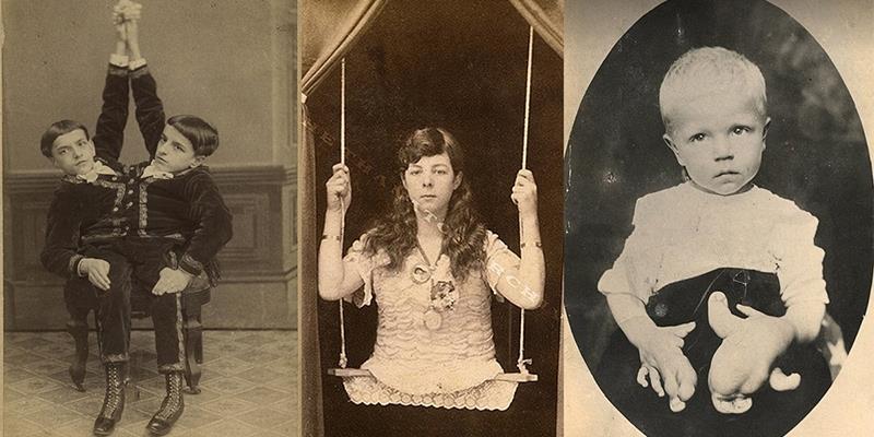 Hãi hùng loạt ảnh thật từng chi tiết từ các show kinh dị thế kỷ 19