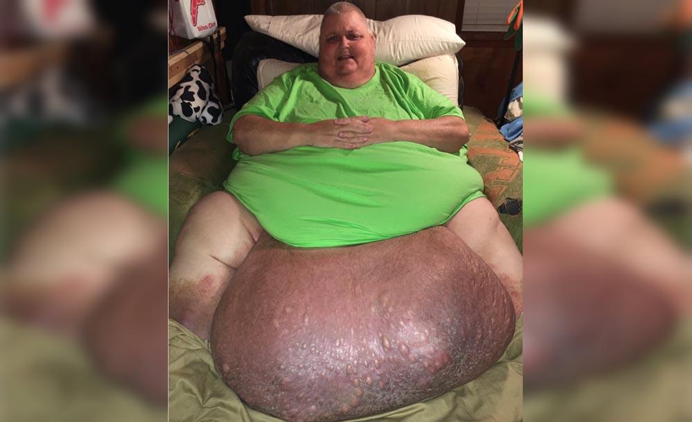 Chỉ vì 1 sợi lông mọc ngược, mang khối u 63 kg suốt 12 năm
