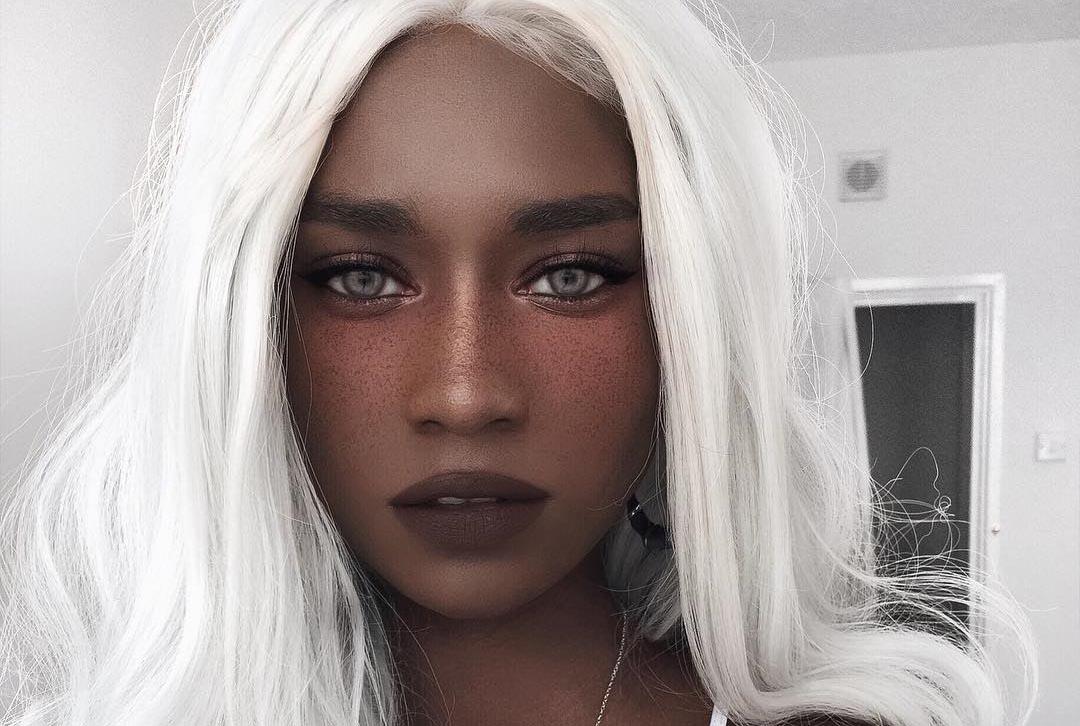 Nữ người mẫu gây tranh cãi với màu tóc và da đối lập