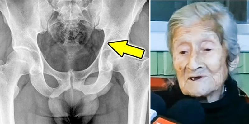 """Phát hiện bào thai """"hóa đá"""" 50 tuổi trong cơ thể cụ bà 92 tuổi"""