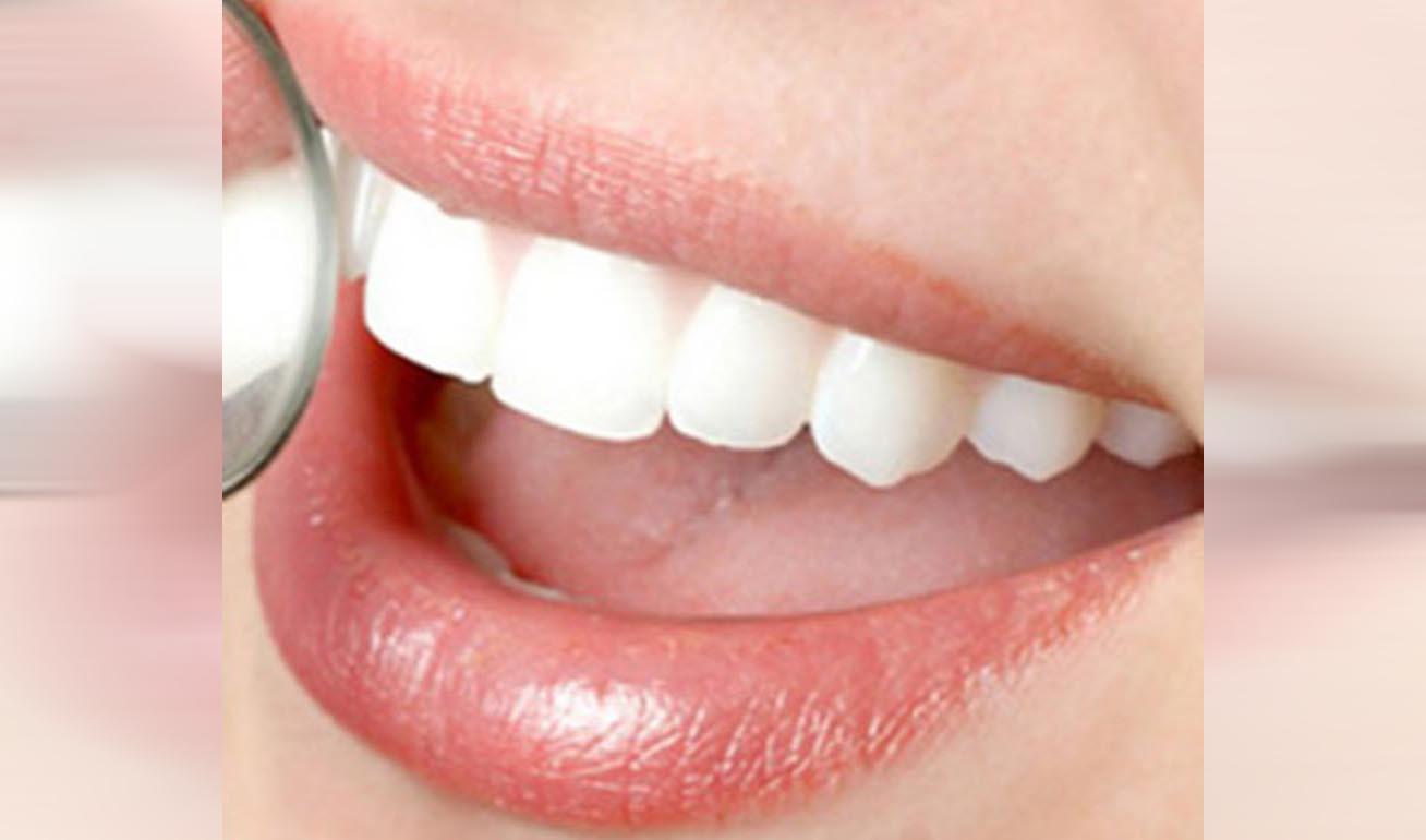 Những nguyên nhân khiến răng bị mất sớm